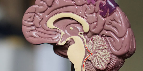 Neuroplasticity: How to Rewire Your Brain - Product Image